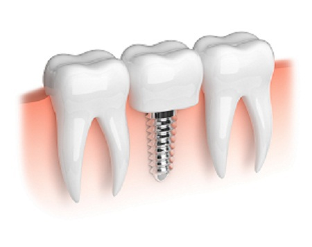 dental implants reviews in Richmond